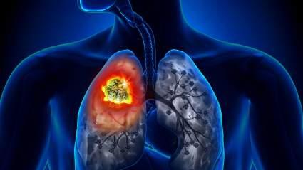 Врачи из Британии сообщили о девяти симптомах рака легких