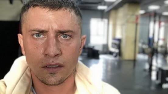 Прилучный показал восстановленное пластикой лицо после избиения