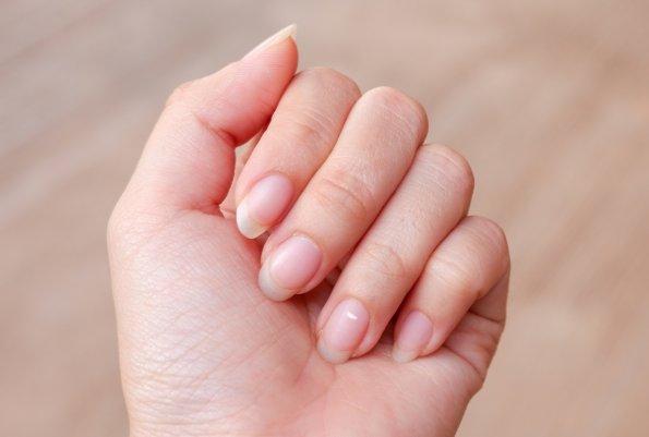 Косметолог Валери Мэн рассказала, о каких проблемах говорят белые пятна на ногтях
