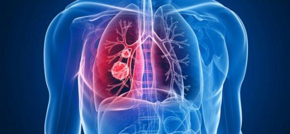 Хирург Виталий Бармин сообщил, что необходимо регулярно проходить диагностику, чтобы снизить возможность наличия рака