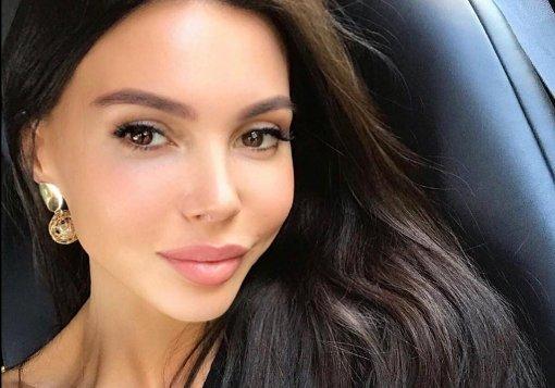 33-летняя модель Оксана Самойлова решила уменьшить губы и получила отек