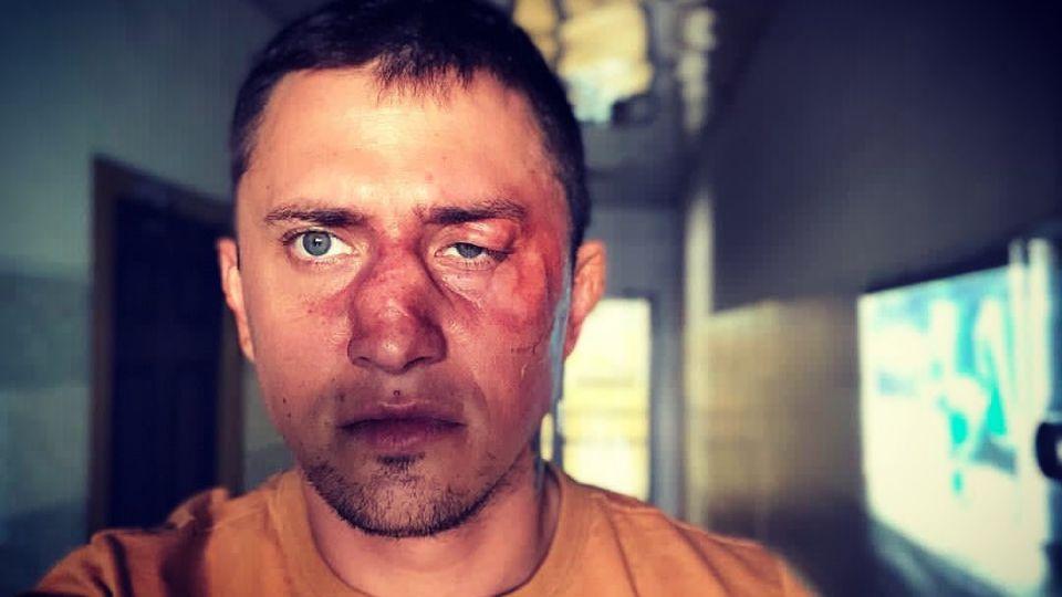 Павел Прилучный разучился разговаривать после драки