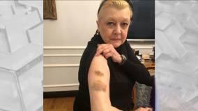 Вчера: Избита подозреваемая в мошенничестве с имуществом Баталова актриса Дрожжина