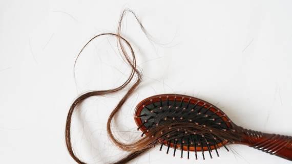 Выпадение волос назвали возможным последствием заражения коронавирусом