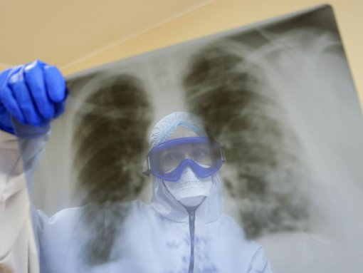 """В """"Векторе"""" заявили, что коронавирус влияет на размножение вируса гриппа"""